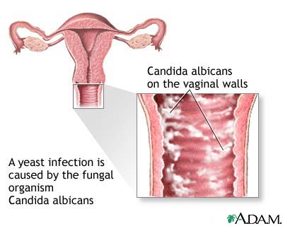 vaginal yeast infection. HOW DO I KNOW IT'S CANDIDA?