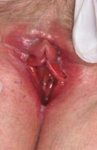 candida infection picture