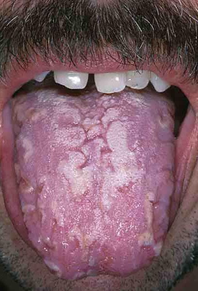 a yeast infection looks like